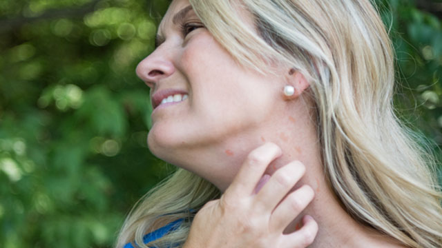 When You're Itching for Relief: Coping with Hives